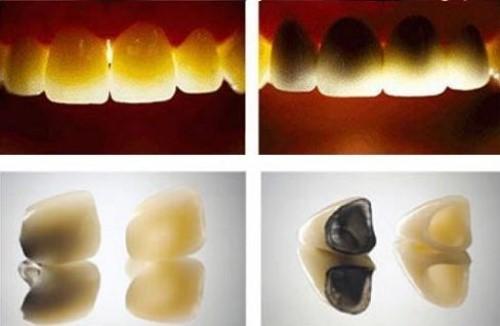 có nên bọc răng sứ titan không? Khi nào nên bọc răng sứ titan 2
