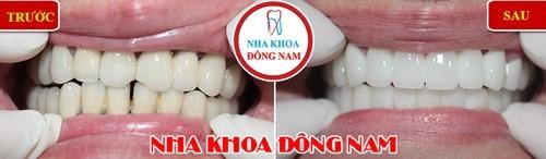 có nên bọc răng sứ titan không? Khi nào nên bọc răng sứ titan 3