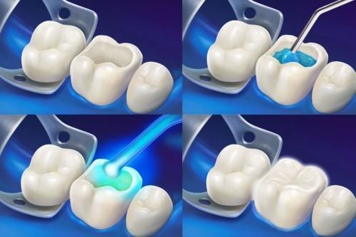 mo phỏng kỹ thuật trám răng