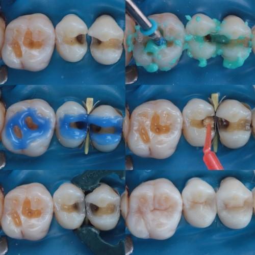 kỹ thuật trám răng