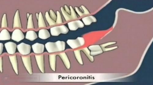có nên trồng răng giả sau khi nhổ răng không 2