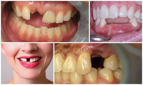 hậu quả khi mất răng