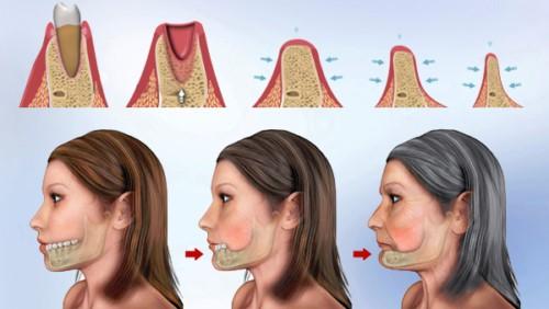 tiêu xương hàm khi mất răng