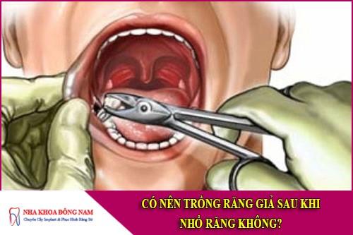 có nên trồng răng giả sau khi nhổ răng không