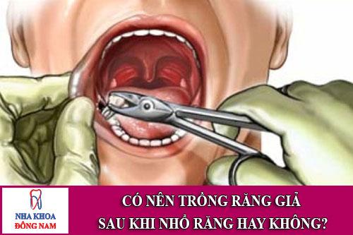 có nên trồng răng giả sau khi nhổ răng hay không