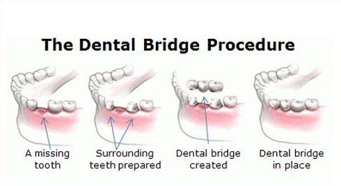 có nên trồng răng sứ bắt cầu không 1