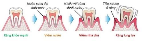 có phải răng bị lung lay là do chữa tủy 1