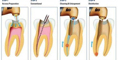 có phải răng bị lung lay là do chữa tủy