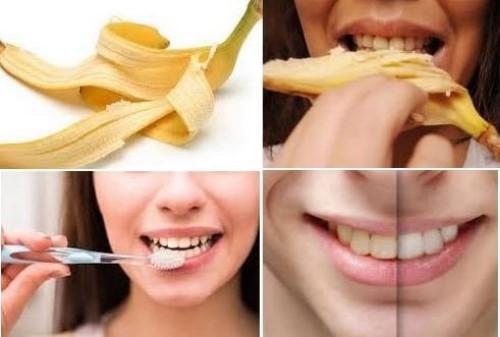 có thể tự lấy cao răng bằng vỏ chuối được không 1