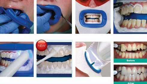 công nghệ tẩy trắng răng bằng đèn laser khác đèn zoom như thế nào 1