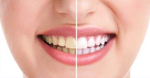 công nghệ tẩy trắng răng bằng đèn laser khác đèn zoom như thế nào 2