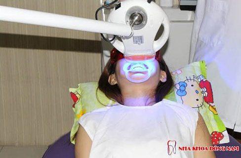 công nghệ tẩy trắng răng bằng đèn laser khác đèn zoom như thế nào 4