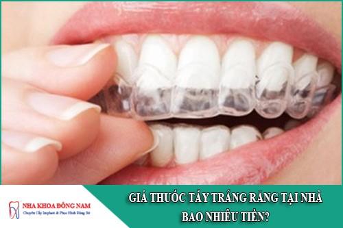 giá thuốc tẩy trắng răng tại nhà bao nhiêu tiền