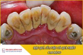 hậu quả của việc có quá nhiều cao răng