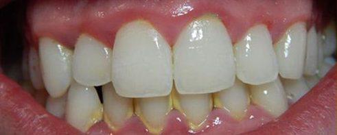 hậu quả của việc có quá nhiều cao răng 2
