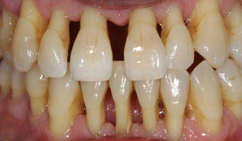 hậu quả của việc có quá nhiều cao răng 5