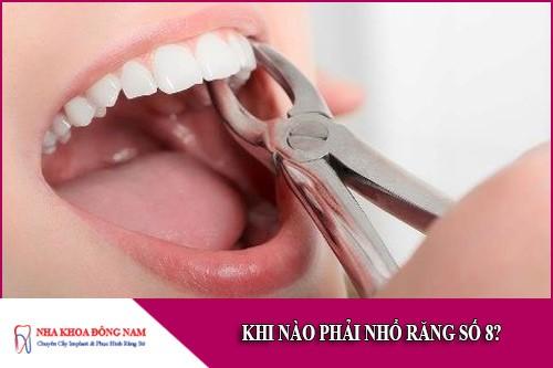 khi nào cần phải nhổ răng số 8