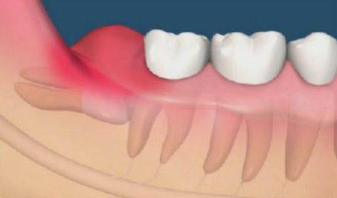 khi nào phải nhổ răng số 8