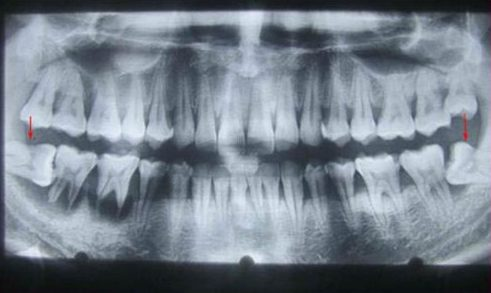 khi nào p6hải nhổ răng số 8