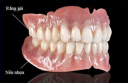 răng giả tháo lắp bao nhiêu tiền