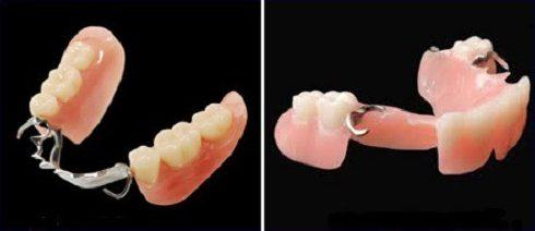 chi phí làm răng giả tháo lắp bao nhiêu tiền 3
