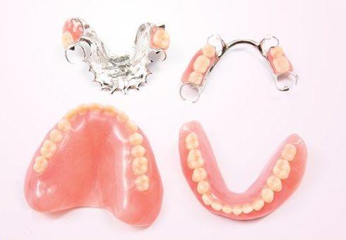 mất răng nên làm răng giả tháo lắp hay cố định 1