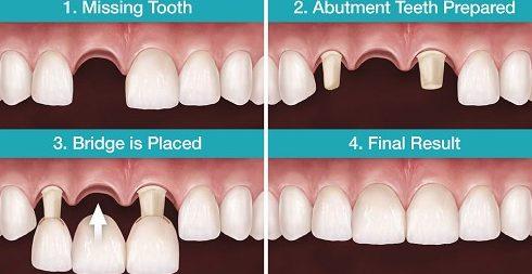 mất răng nên làm răng giả tháo lắp hay cố định 2