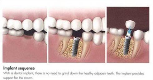 mất răng nên làm răng giả tháo lắp hay cố định 3