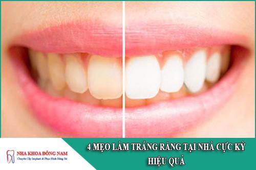 mẹo làm trắng răng tại nhà cực kỳ hiệu quả