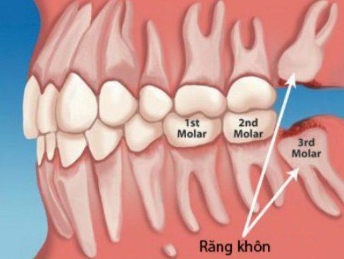 nên nhổ răng khôn mọc trong cùng hay giữ lại 1
