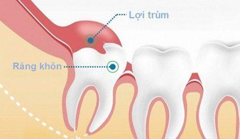 nên nhổ răng khôn mọc trong cùng hay giữ lại 2