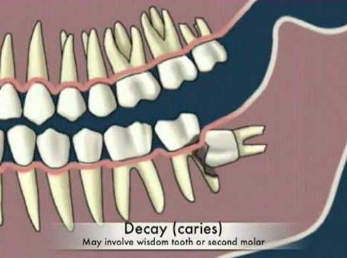 nên nhổ răng khôn mọc trong cùng hay giữ lại 4