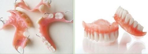 nguyên nhân gây hôi miệng khi trồng răng giả