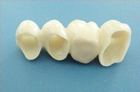 nguyên nhân gây hôi miệng khi trồng răng giả 4