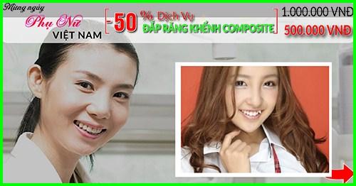 nha khoa đông nam giảm 50% giá đắp răng khểnh composite nhân ngày phụ nữ việt nam 20/10