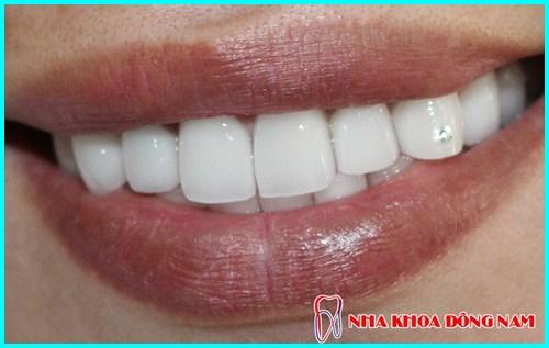nha khoa đông nam giảm 50% giá đính đá lên răng nhân dịp ngày phụ nữ việt nam 20/10 4
