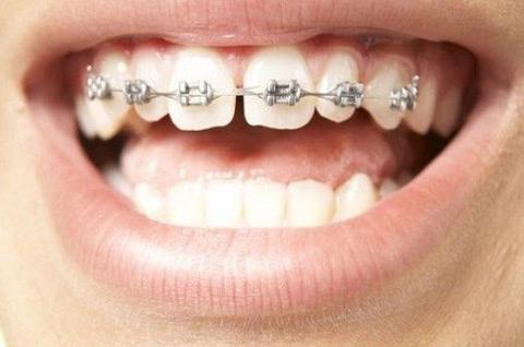 niềng 2 răng cửa thưa