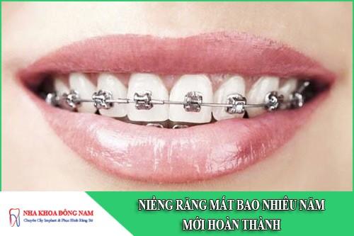 niềng răng mất bao nhiêu năm mới hoàn thành