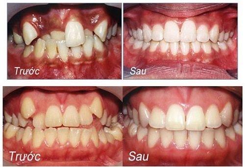 niềng răng mất bao nhiêu năm mới hoàn thành 1