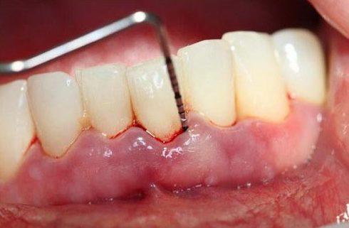 niềng răng mất bao nhiêu năm mới hoàn thành 2