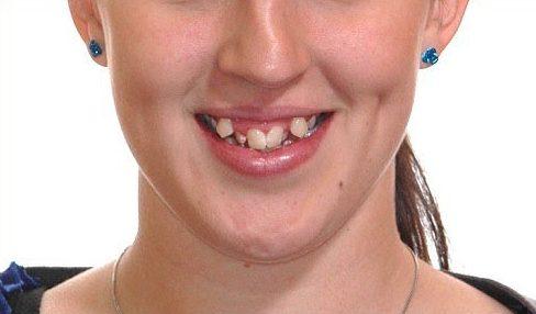 niềng răng mất bao nhiêu năm mới hoàn thành 4
