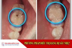 phương pháp điều trị răng bị sâu nhẹ