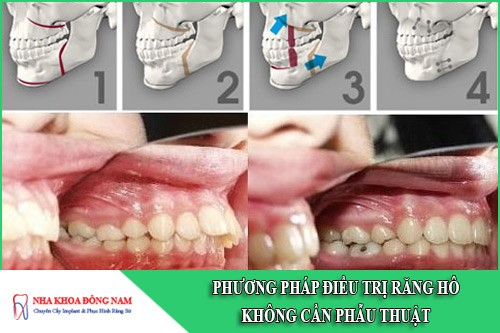 phương pháp điều trị răng hô không cần phẫu thuật