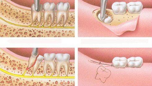 phương pháp nhổ răng số 8 được thực hiện như thế nào 3