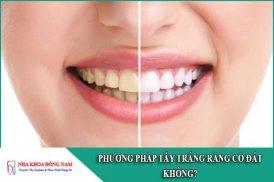phương pháp tẩy trắng răng có đắt không
