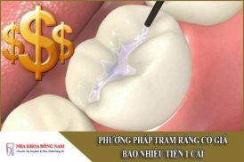 phương pháp trám răng có giá bao nhiêu tiền 1 cái