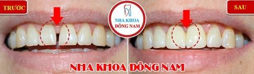 phương pháp trám răng có giá bao nhiêu tiền 1 cái 2