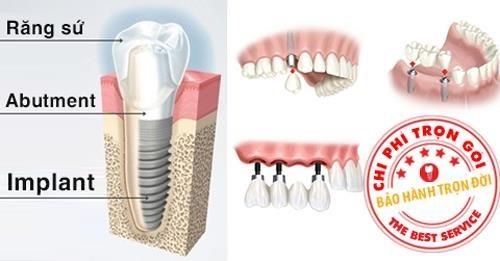 cấu tạo răng giả implant
