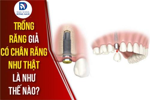 phương pháp trồng răng giả có chân răng như thật là như thế nào