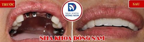 trồng răng giả có chân răng bằng implant